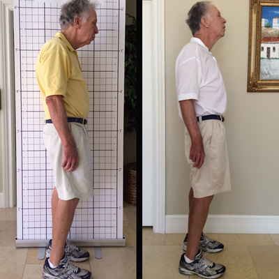 Before and After 3 Month Posture Program